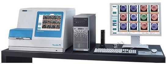 Embryoscope para el cultivo de embriones en la gestación subrogada