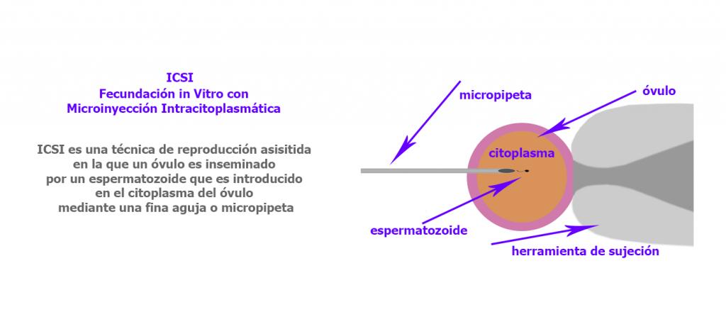 La gestación subrogada como técnica de reproducción asistida